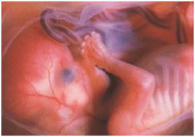15 hetes terhesség derékfájás